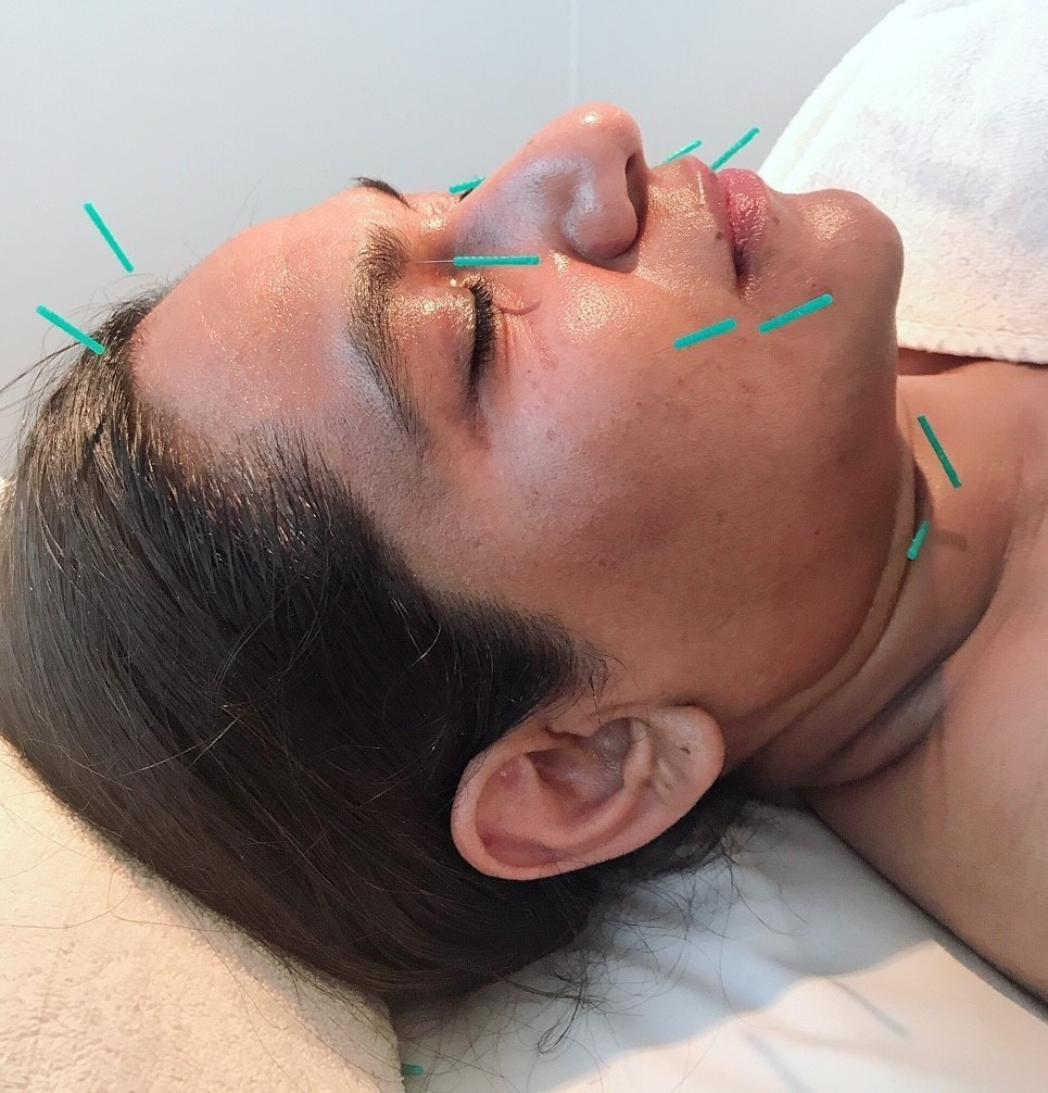 美容鍼(cosmetic acupuncture)